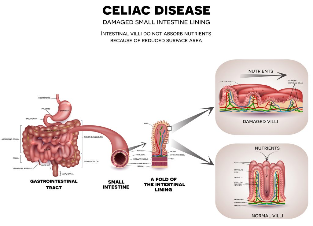 Gastrointestinal tract anatomy and Celiac disease- Ultimate Guide to Gut Health