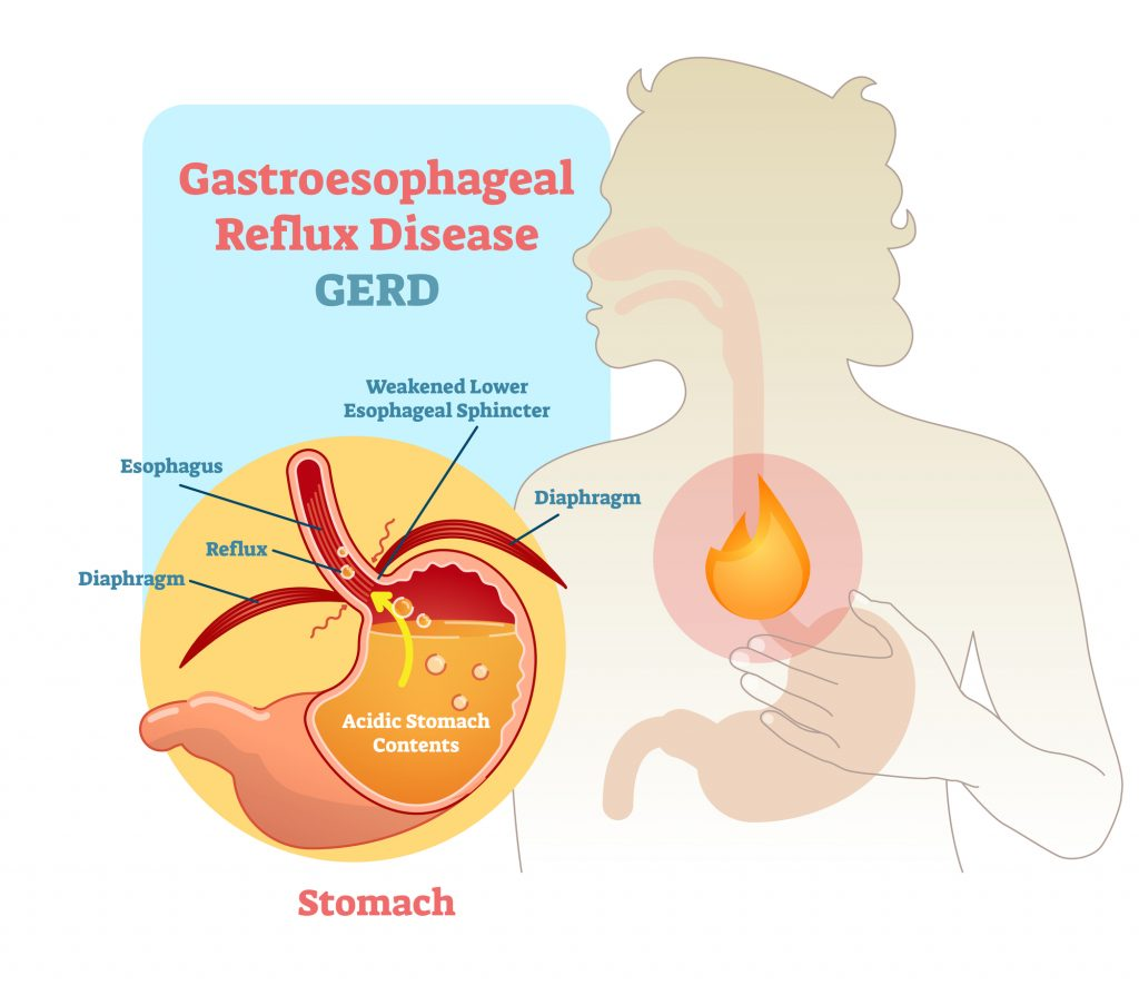 Diagram of Stomach and LES -Acid Reflux
